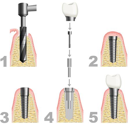 Zahnarzt Harburg, Zahnästhetik, Zahnersatz